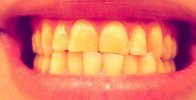 dientes con bruxismo